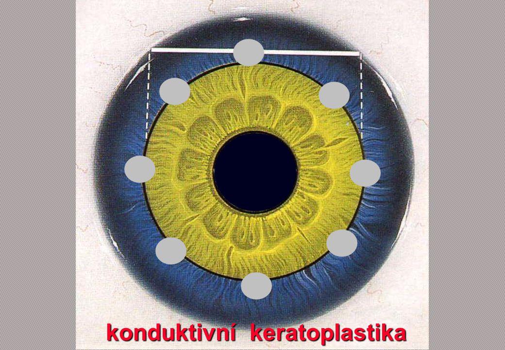 konduktivní keratoplastika