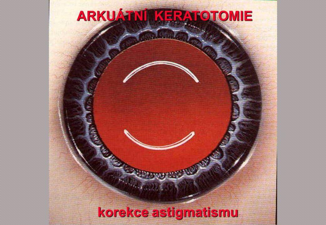 ARKUÁTNÍ KERATOTOMIE ARKUÁTNÍ KERATOTOMIE korekce astigmatismu korekce astigmatismu