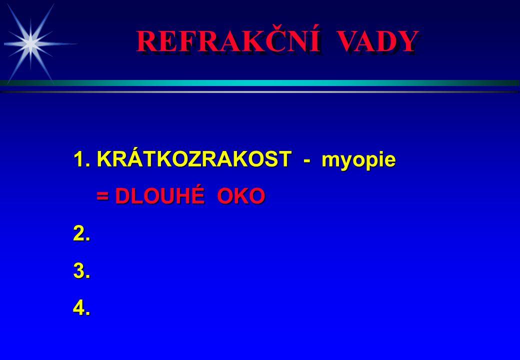 REFRAKČNÍ VADY 1. KRÁTKOZRAKOST - myopie 2. DALEKOZRAKOST - 3.4.