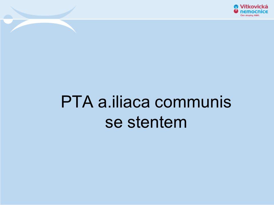 PTA a.iliaca communis se stentem