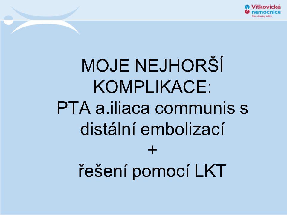 MOJE NEJHORŠÍ KOMPLIKACE: PTA a.iliaca communis s distální embolizací + řešení pomocí LKT