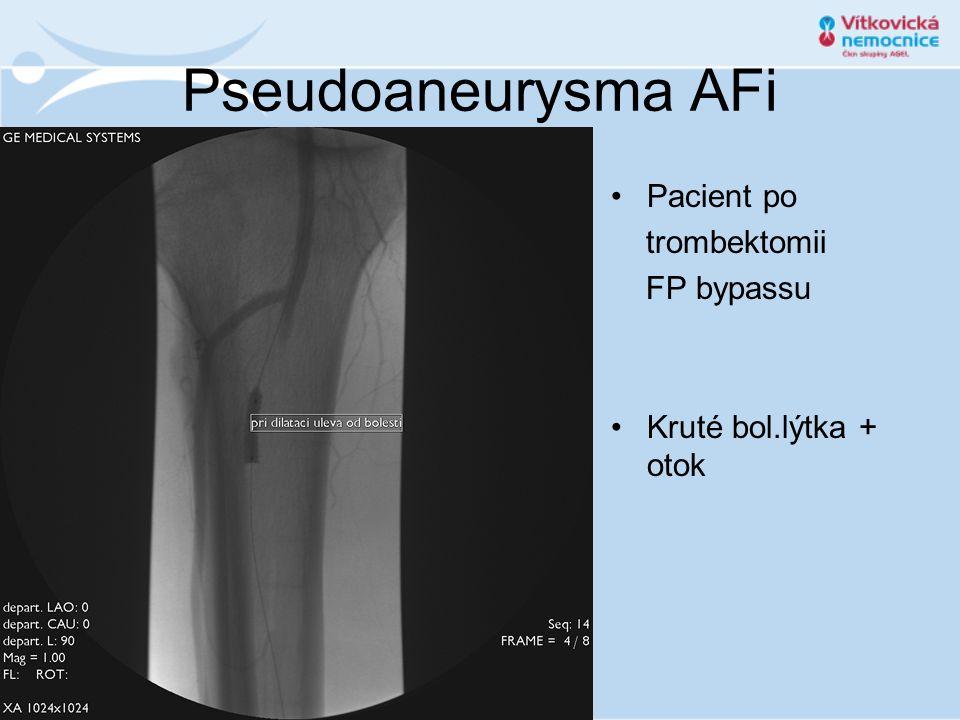 Pseudoaneurysma AFi •Pacient po trombektomii FP bypassu •Kruté bol.lýtka + otok