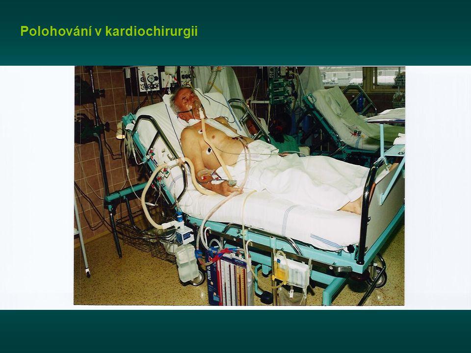Polohování v kardiochirurgii