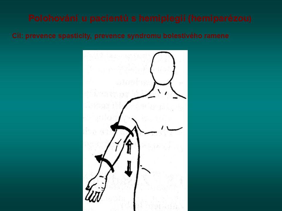 Polohování u pacientů s hemiplegií (hemiparézou ) Cíl: prevence spasticity, prevence syndromu bolestivého ramene