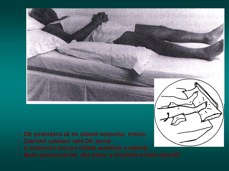 • DK podložena až do oblasti sedacího hrbolu • Zabránit vytáčení celé DK zevně • U kolenního kloubu střídat semiflexi s extenzí • Nohu polohovat tak,