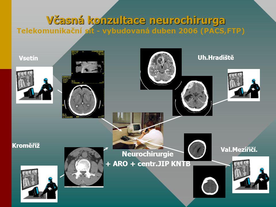 Včasná konzultace neurochirurga Vsetín Uh.Hradiště Val.Meziřičí. Kroměříž Neurochirurgie + ARO + centr.JIP KNTB Telekomunikační sít - vybudovaná duben