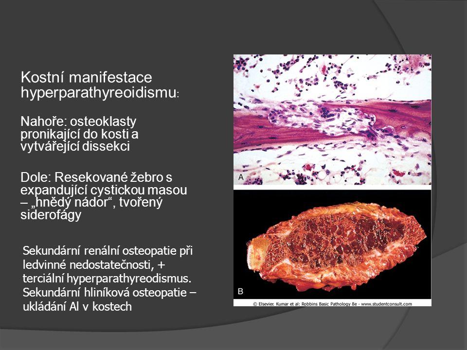 """Kostní manifestace hyperparathyreoidismu : Nahoře: osteoklasty pronikající do kosti a vytvářející dissekci Dole: Resekované žebro s expandující cystickou masou – """"hnědý nádor , tvořený siderofágy Sekundární renální osteopatie při ledvinné nedostatečnosti, + terciální hyperparathyreodismus."""