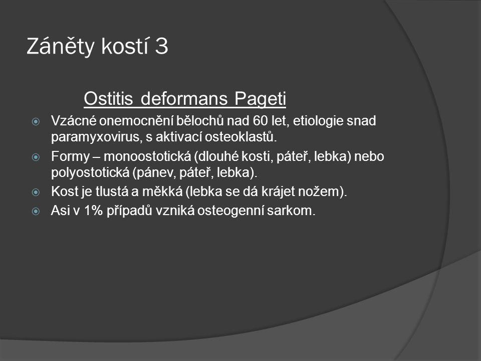 Záněty kostí 3 Ostitis deformans Pageti  Vzácné onemocnění bělochů nad 60 let, etiologie snad paramyxovirus, s aktivací osteoklastů.