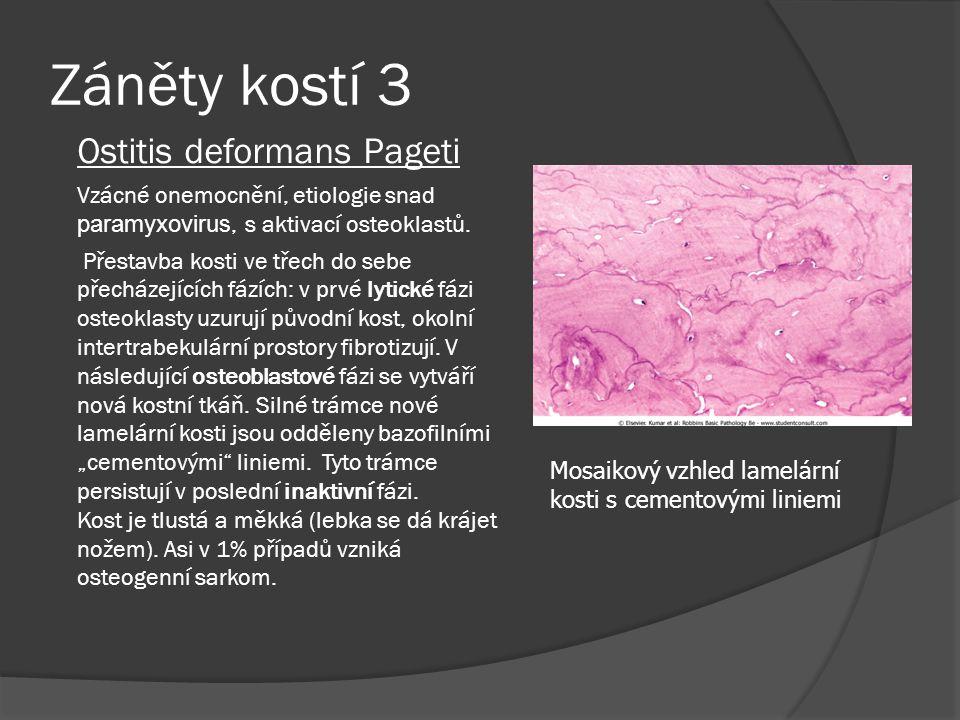 Záněty kostí 3 Ostitis deformans Pageti Vzácné onemocnění, etiologie snad paramyxovirus, s aktivací osteoklastů.
