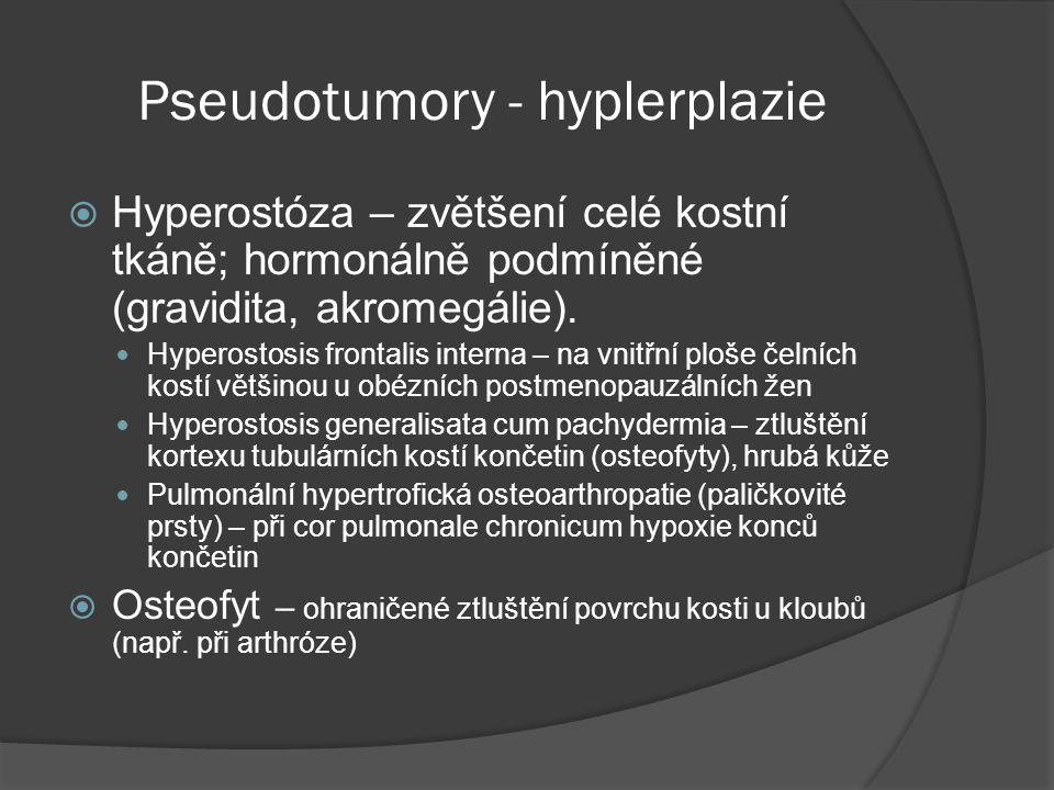 Pseudotumory - hyplerplazie  Hyperostóza – zvětšení celé kostní tkáně; hormonálně podmíněné (gravidita, akromegálie).
