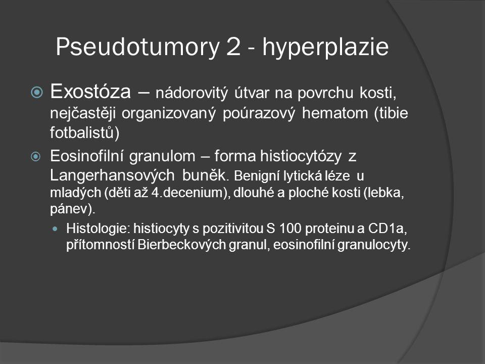 Pseudotumory 2 - hyperplazie  Exostóza – nádorovitý útvar na povrchu kosti, nejčastěji organizovaný poúrazový hematom (tibie fotbalistů)  Eosinofilní granulom – forma histiocytózy z Langerhansových buněk.