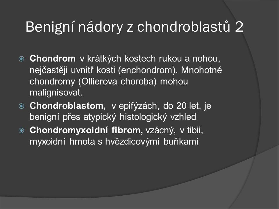 Benigní nádory z chondroblastů 2  Chondrom v krátkých kostech rukou a nohou, nejčastěji uvnitř kosti (enchondrom).