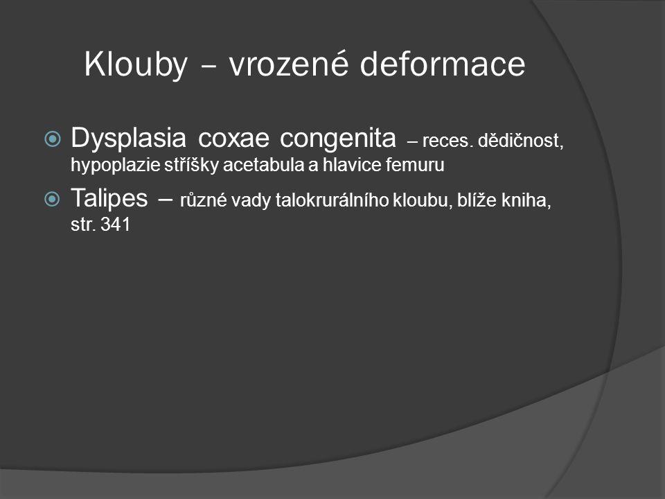 Klouby – vrozené deformace  Dysplasia coxae congenita – reces.