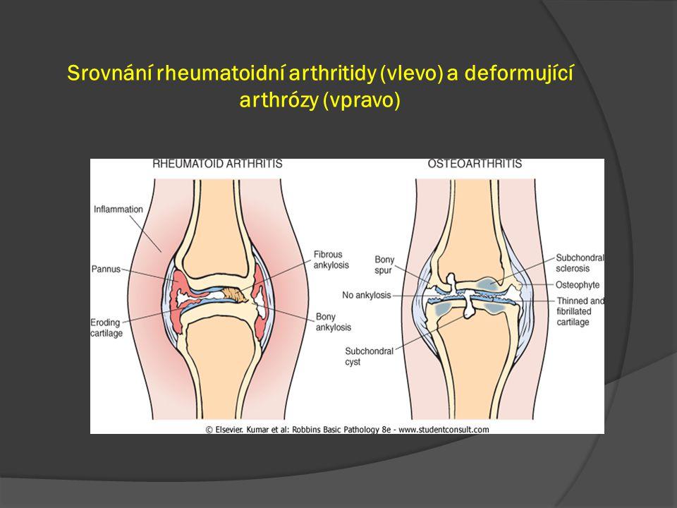 Srovnání rheumatoidní arthritidy (vlevo) a deformující arthrózy (vpravo)