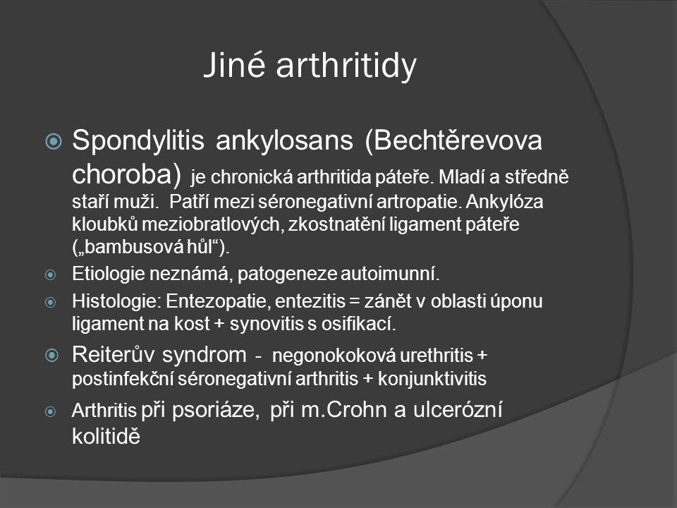 Jiné arthritidy  Spondylitis ankylosans (Bechtěrevova choroba) je chronická arthritida páteře.