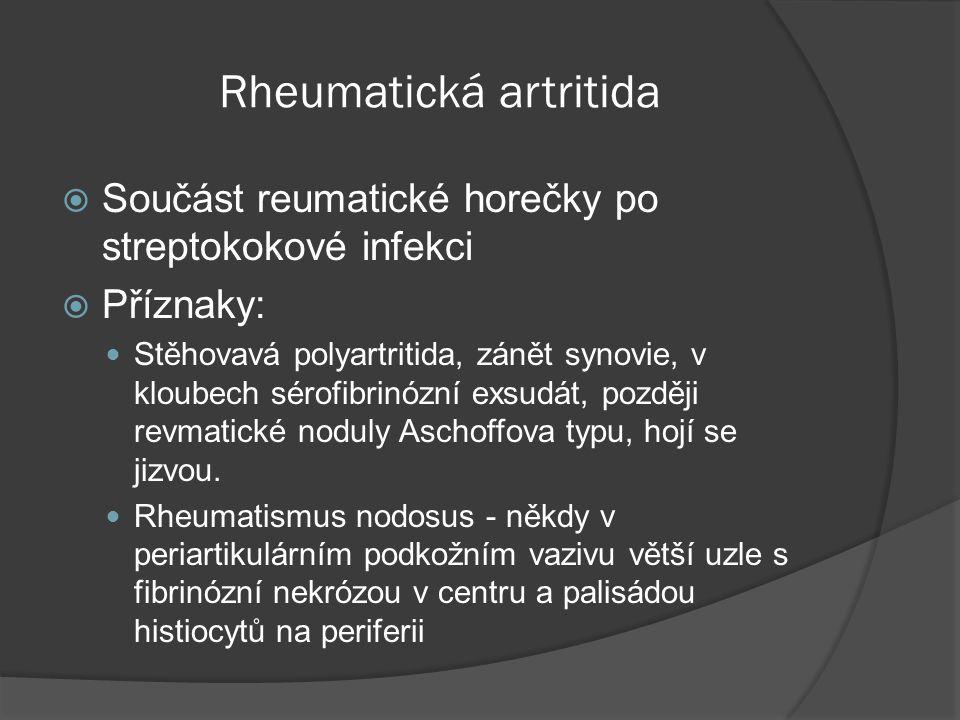 Rheumatická artritida  Součást reumatické horečky po streptokokové infekci  Příznaky:  Stěhovavá polyartritida, zánět synovie, v kloubech sérofibrinózní exsudát, později revmatické noduly Aschoffova typu, hojí se jizvou.