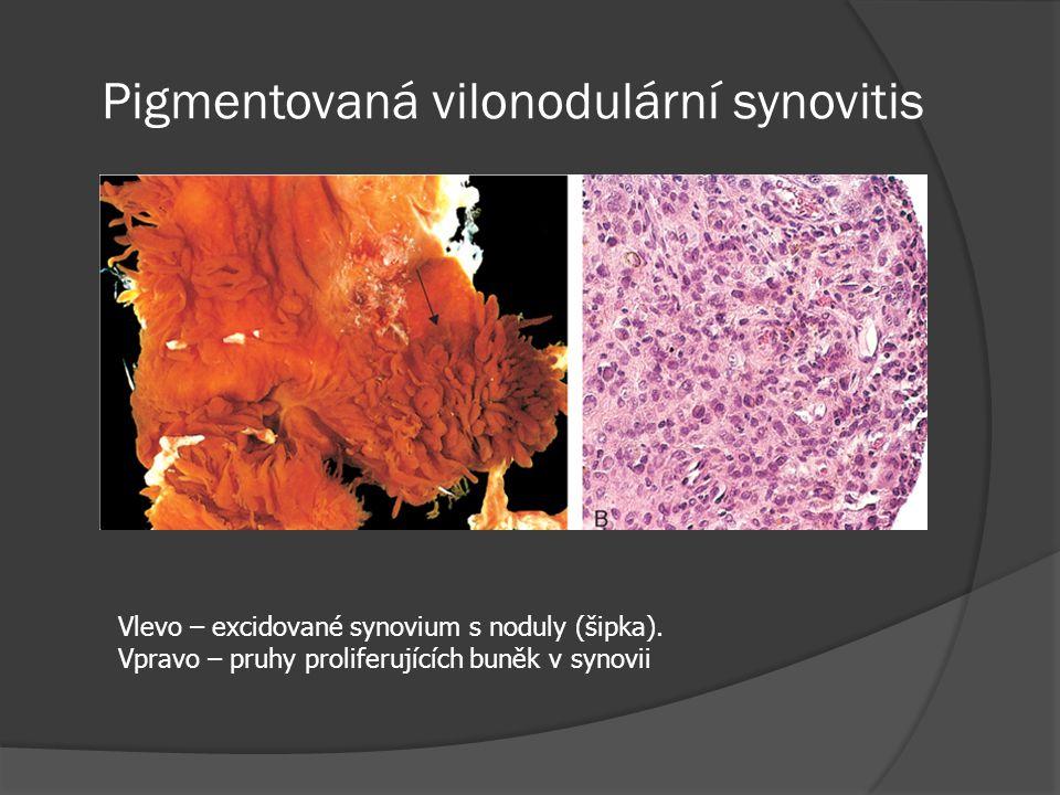 Pigmentovaná vilonodulární synovitis Vlevo – excidované synovium s noduly (šipka).