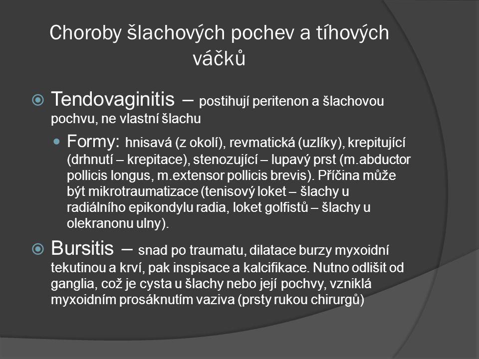 Choroby šlachových pochev a tíhových váčků  Tendovaginitis – postihují peritenon a šlachovou pochvu, ne vlastní šlachu  Formy: hnisavá (z okolí), revmatická (uzlíky), krepitující (drhnutí – krepitace), stenozující – lupavý prst (m.abductor pollicis longus, m.extensor pollicis brevis).