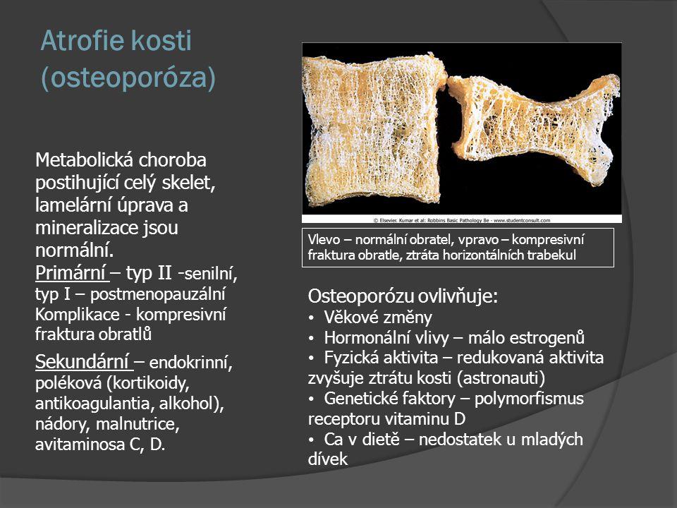 Méně časté kostní nádory  Vaskulární nádory – ve všech formách od hemangiomu po angiosarkom  Syndrom masivní osteolýzy (Gorham-Stout) - mizející kosti, mladí lidé, od ramene a kyčle, kost se mění na cévnatou tkáň, snad forma angiomu, vzácné  Fibrózní nádory – osifikující fibróm, jen v mandibule x fibrozní dysplázie  Fibrosarkom kosti – dlouhé kosti starých lidí  Benigní a maligní fibrózní histiocytom - běžné nádory měkkých tkání jsou v kosti výjimečné