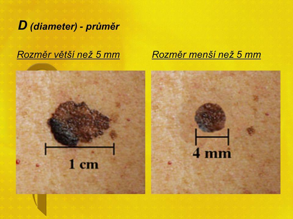 D (diameter) - průměr Rozměr větší než 5 mmRozměr menší než 5 mm