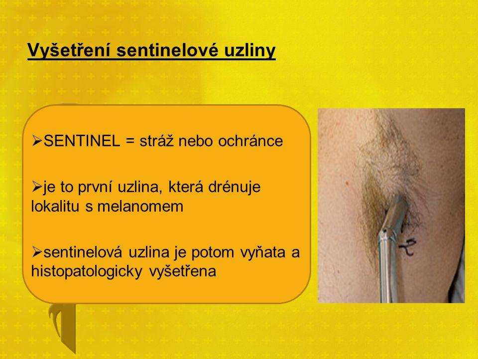 Vyšetření sentinelové uzliny  SENTINEL = stráž nebo ochránce  je to první uzlina, která drénuje lokalitu s melanomem  sentinelová uzlina je potom v