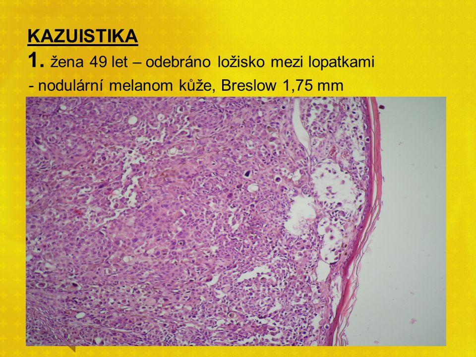 KAZUISTIKA 1. žena 49 let – odebráno ložisko mezi lopatkami - nodulární melanom kůže, Breslow 1,75 mm