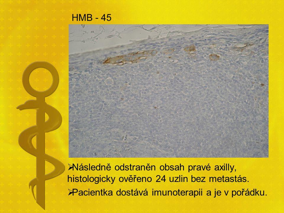 HMB - 45  Následně odstraněn obsah pravé axilly, histologicky ověřeno 24 uzlin bez metastás.  Pacientka dostává imunoterapii a je v pořádku.