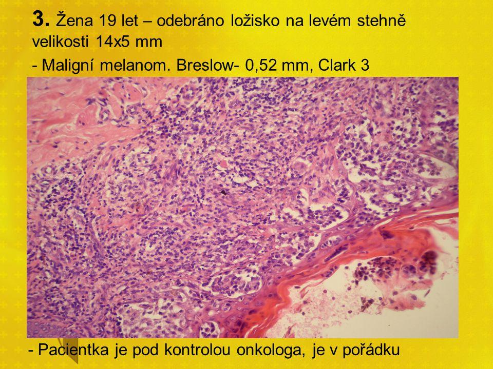 3. Žena 19 let – odebráno ložisko na levém stehně velikosti 14x5 mm - Maligní melanom. Breslow- 0,52 mm, Clark 3 - Pacientka je pod kontrolou onkologa