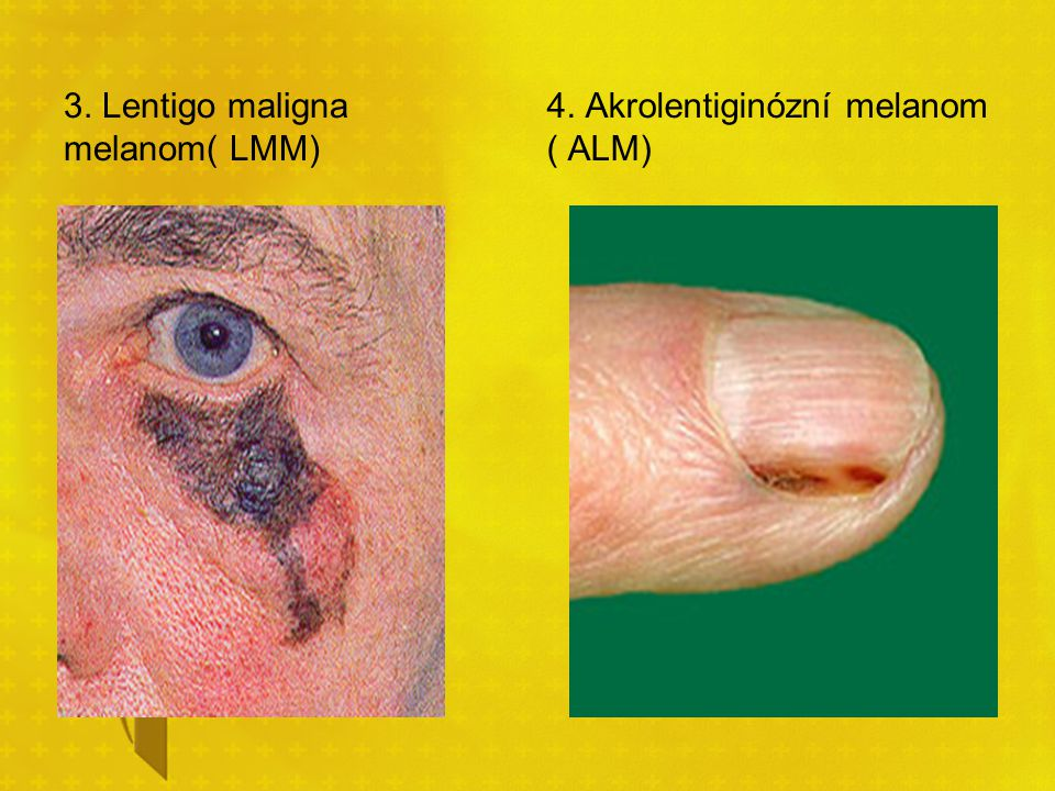 3. Lentigo maligna melanom( LMM) 4. Akrolentiginózní melanom ( ALM)