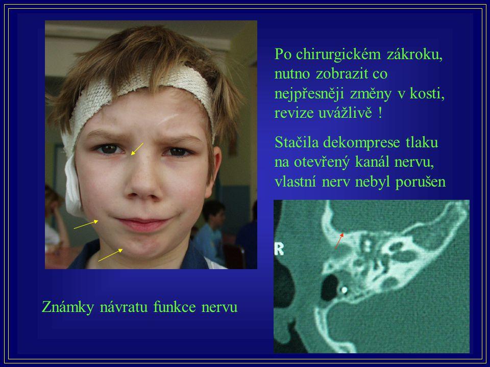 Po chirurgickém zákroku, nutno zobrazit co nejpřesněji změny v kosti, revize uvážlivě ! Stačila dekomprese tlaku na otevřený kanál nervu, vlastní nerv