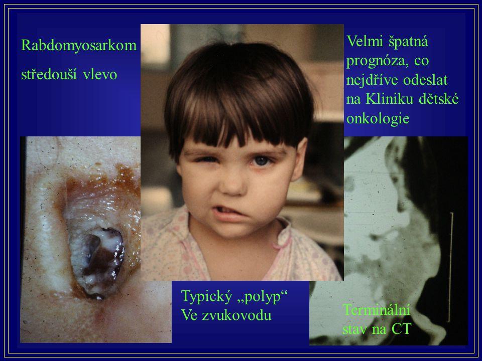 """Rabdomyosarkom středouší vlevo Typický """"polyp"""" Ve zvukovodu Velmi špatná prognóza, co nejdříve odeslat na Kliniku dětské onkologie Terminální stav na"""