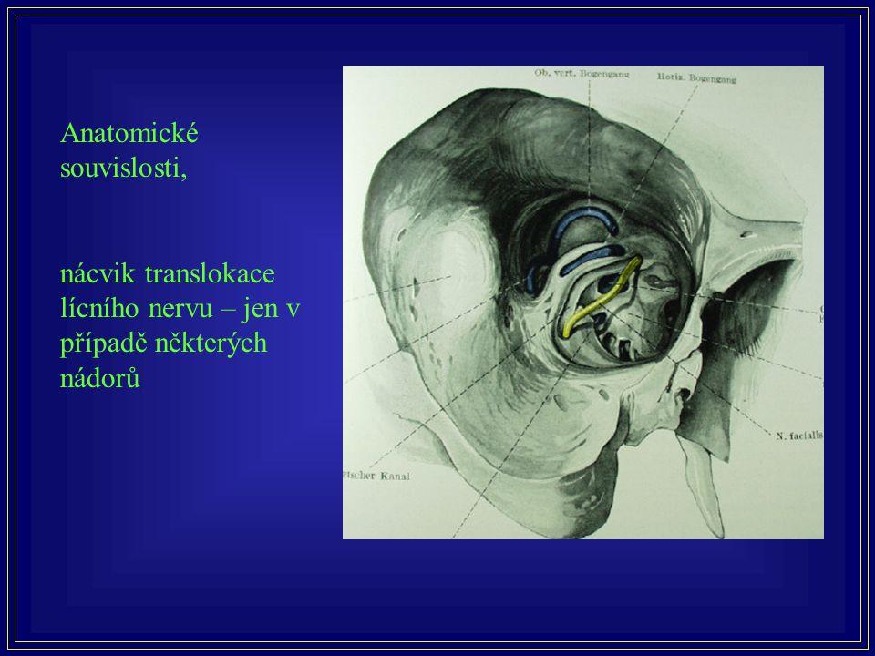Anatomické souvislosti, nácvik translokace lícního nervu – jen v případě některých nádorů