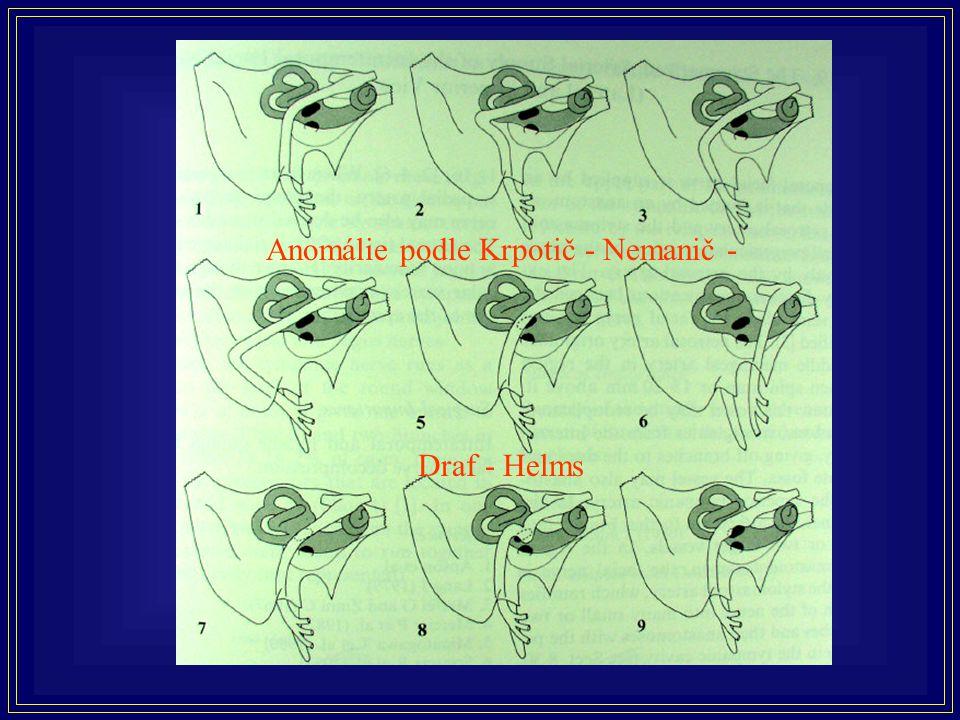 Běžnější anomálie průběhu lícního nervu Anomálie podle Krpotič - Nemanič - Draf - Helms