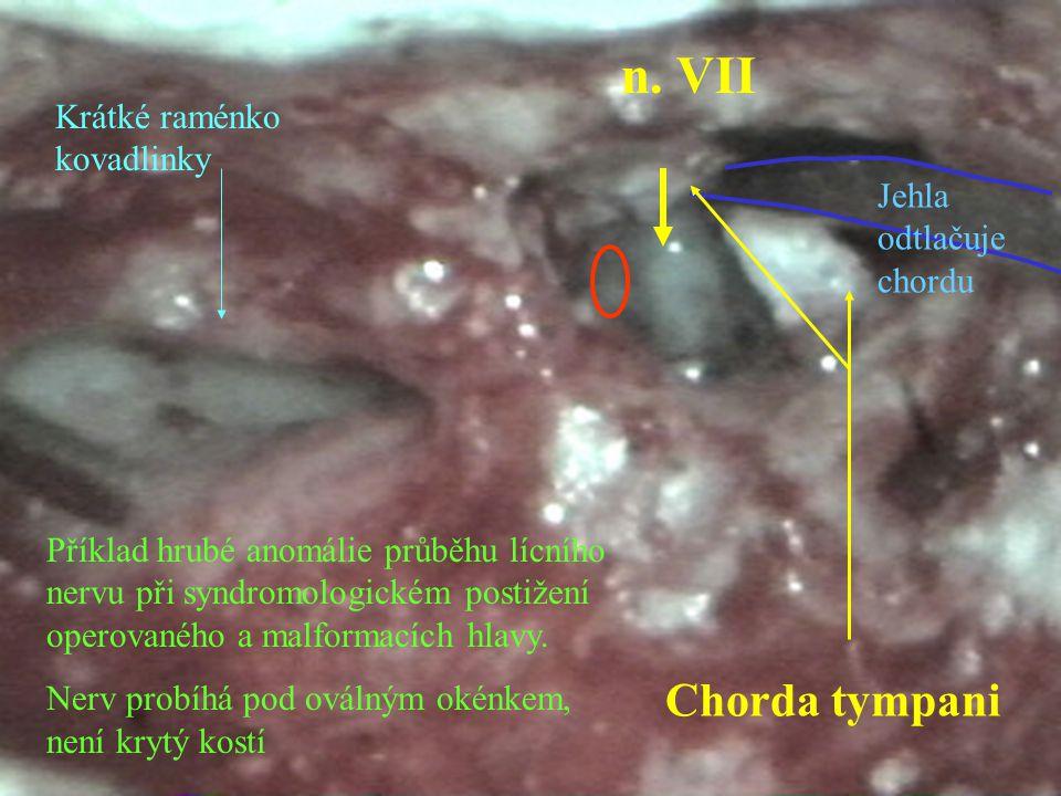 Chorda tympani n. VII Jehla odtlačuje chordu Příklad hrubé anomálie průběhu lícního nervu při syndromologickém postižení operovaného a malformacích hl