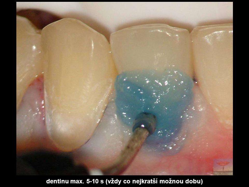 dentinu max. 5-10 s (vždy co nejkratší možnou dobu)