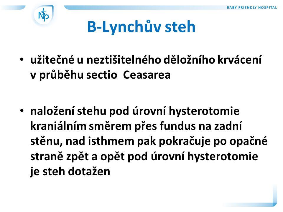 B-Lynchův steh • užitečné u neztišitelného děložního krvácení v průběhu sectio Ceasarea • naložení stehu pod úrovní hysterotomie kraniálním směrem přes fundus na zadní stěnu, nad isthmem pak pokračuje po opačné straně zpět a opět pod úrovní hysterotomie je steh dotažen