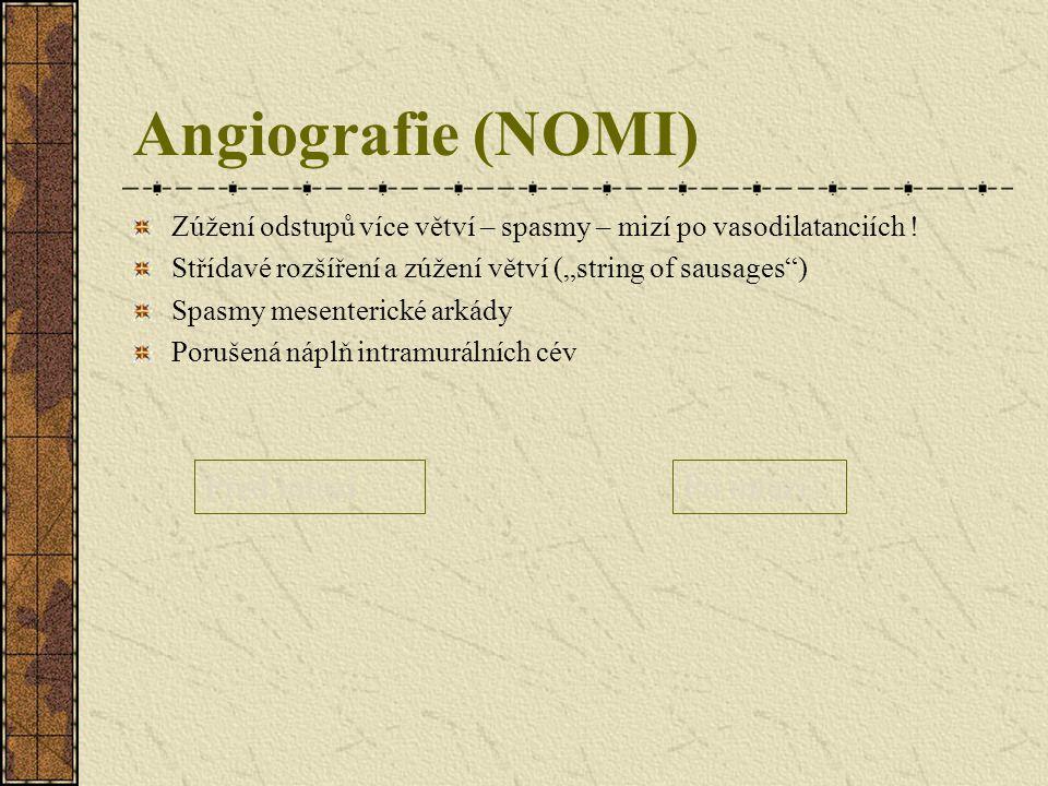 """Angiografie (NOMI) Zúžení odstupů více větví – spasmy – mizí po vasodilatanciích ! Střídavé rozšíření a zúžení větví (""""string of sausages"""") Spasmy mes"""