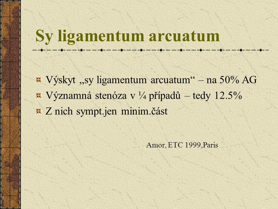 """Sy ligamentum arcuatum Výskyt """"sy ligamentum arcuatum"""" – na 50% AG Významná stenóza v ¼ případů – tedy 12.5% Z nich sympt.jen minim.část Amor, ETC 199"""