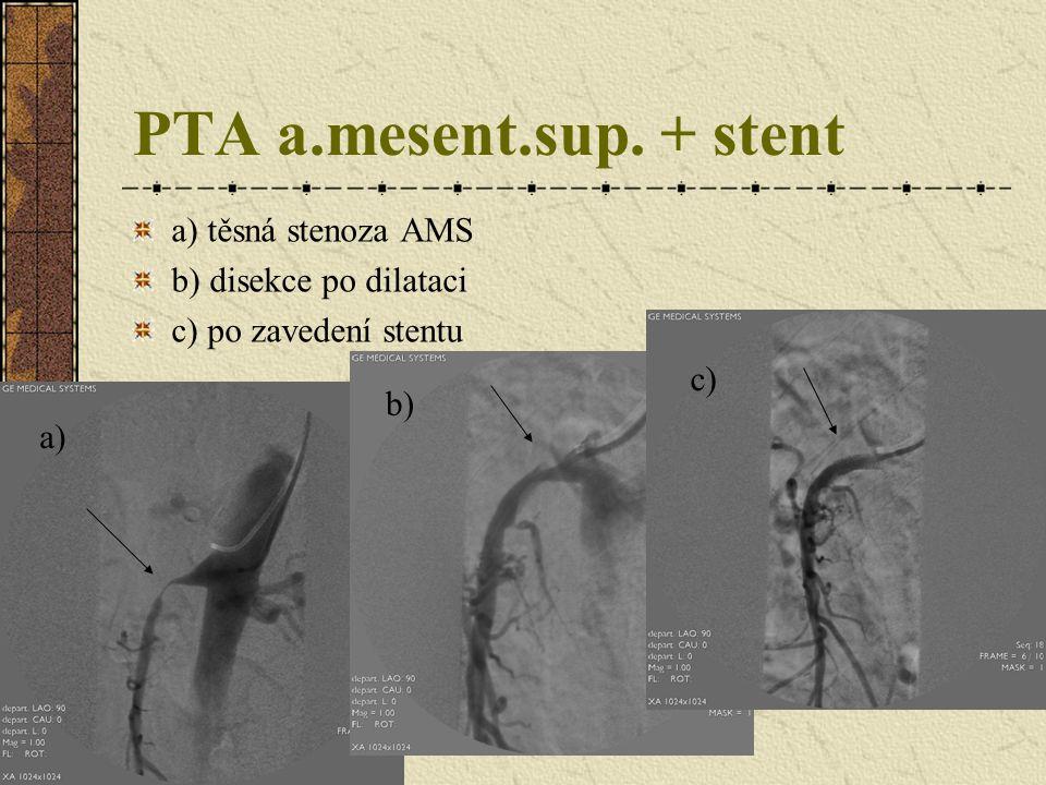 PTA a.mesent.sup. + stent a) těsná stenoza AMS b) disekce po dilataci c) po zavedení stentu a) b) c)