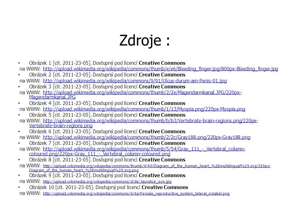 Zdroje : • Obrázek 1 [cit.2011-23-05].