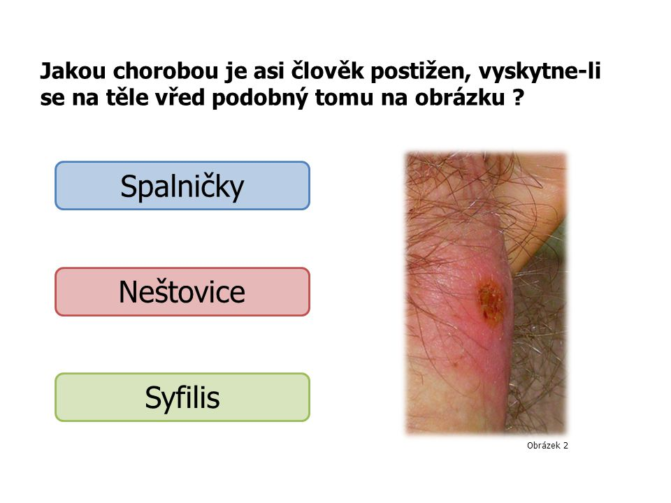 Člověk na obrázku Onemocněl žloutenkou Používá barevné kontaktní čočky Patří k žlutohnědé rase Obrázek 9