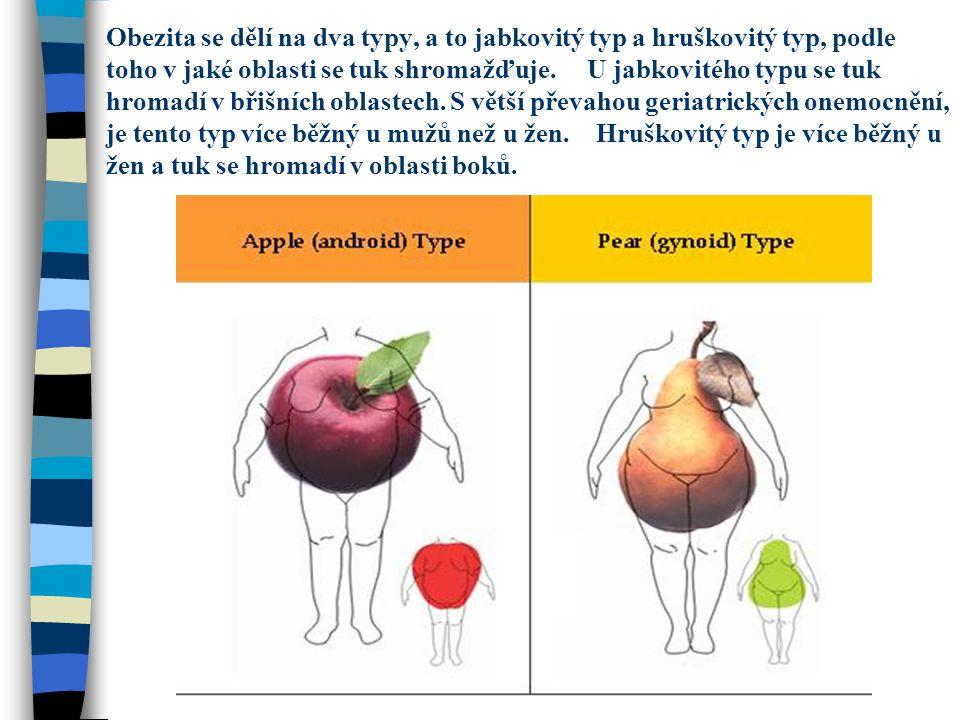 Obezita se dělí na dva typy, a to jabkovitý typ a hruškovitý typ, podle toho v jaké oblasti se tuk shromažďuje. U jabkovitého typu se tuk hromadí v bř