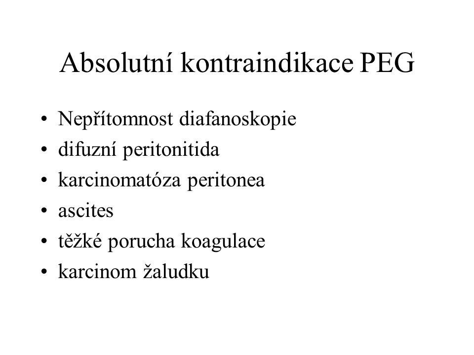 Absolutní kontraindikace PEG •Nepřítomnost diafanoskopie •difuzní peritonitida •karcinomatóza peritonea •ascites •těžké porucha koagulace •karcinom ža
