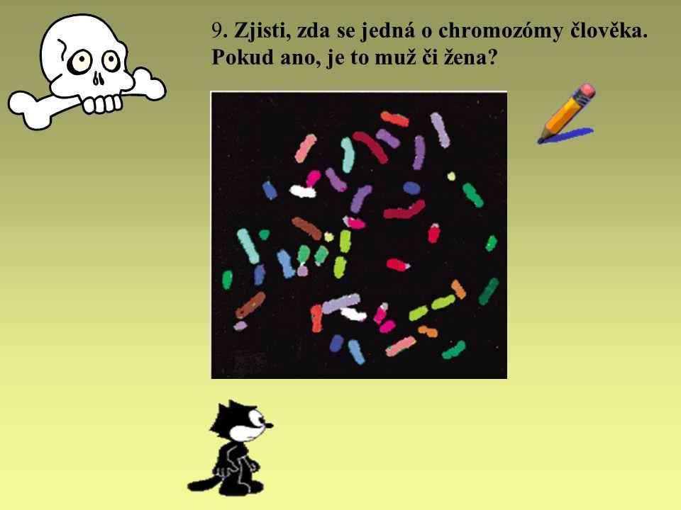 9. Zjisti, zda se jedná o chromozómy člověka. Pokud ano, je to muž či žena?