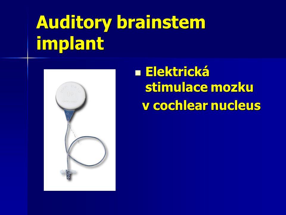 Auditory brainstem implant  Elektrická stimulace mozku v cochlear nucleus v cochlear nucleus