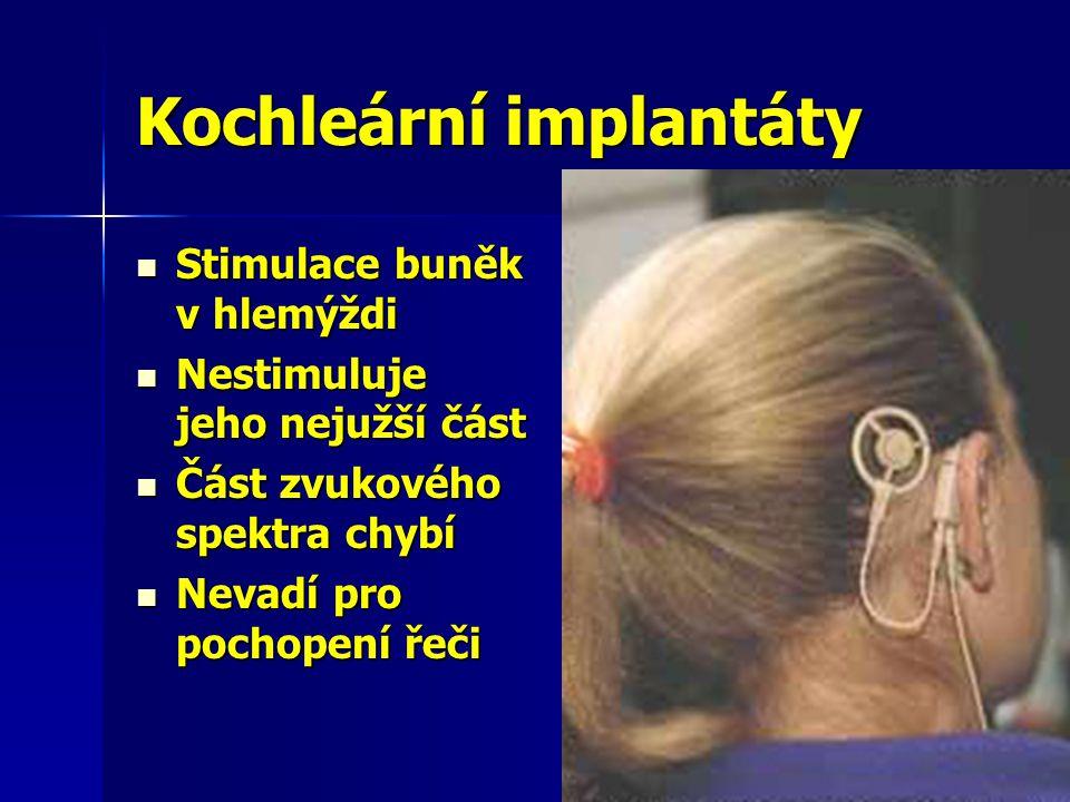 Kochleární implantáty  Stimulace buněk v hlemýždi  Nestimuluje jeho nejužší část  Část zvukového spektra chybí  Nevadí pro pochopení řeči