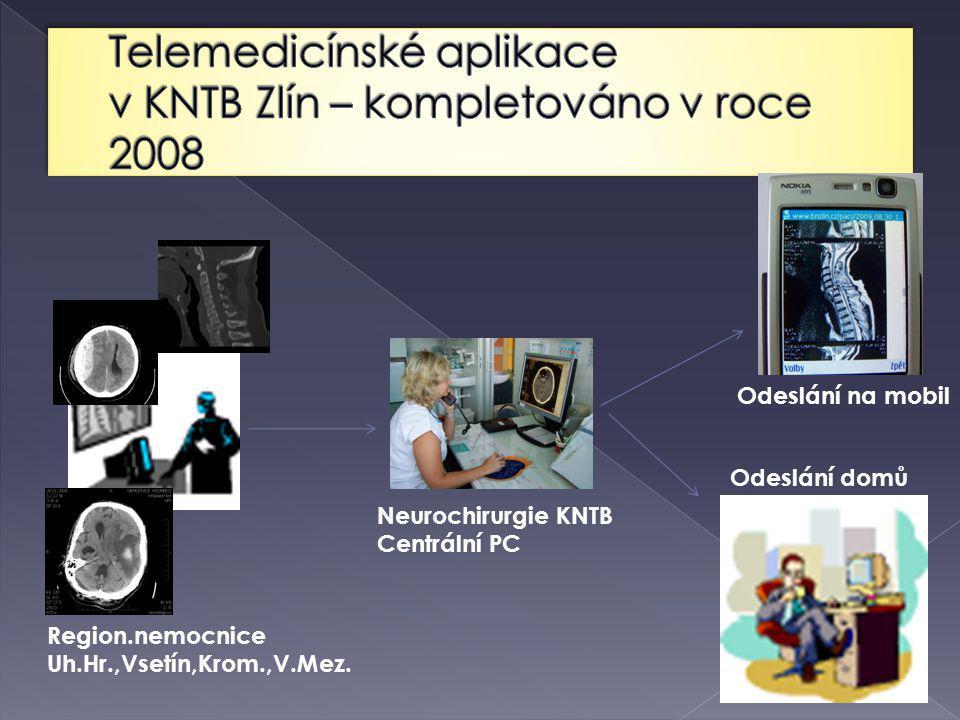 Neurochirurgie KNTB Centrální PC Odeslání na mobil Region.nemocnice Uh.Hr.,Vsetín,Krom.,V.Mez.