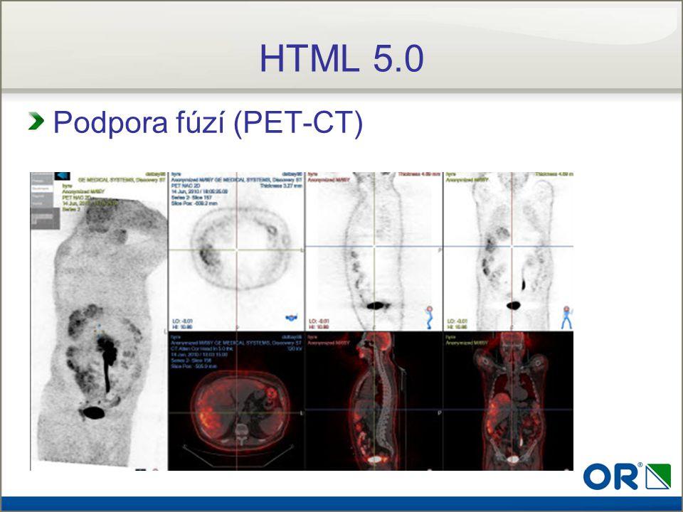 Podpora fúzí (PET-CT) HTML 5.0