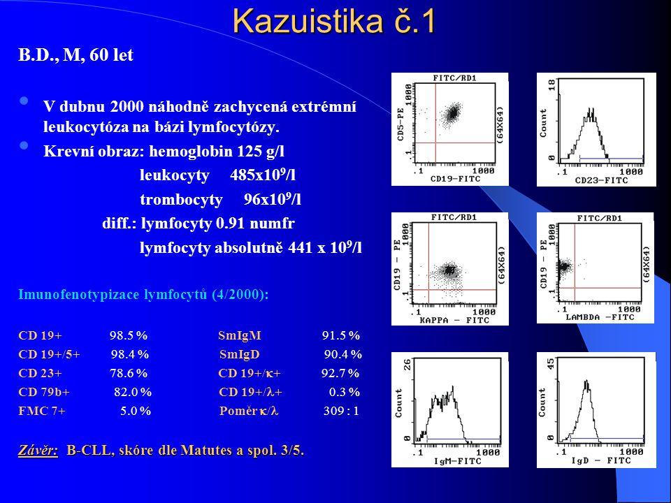 Kazuistika č.1 B.D., M, 60 let • V dubnu 2000 náhodně zachycená extrémní leukocytóza na bázi lymfocytózy. • Krevní obraz: hemoglobin 125 g/l leukocyty