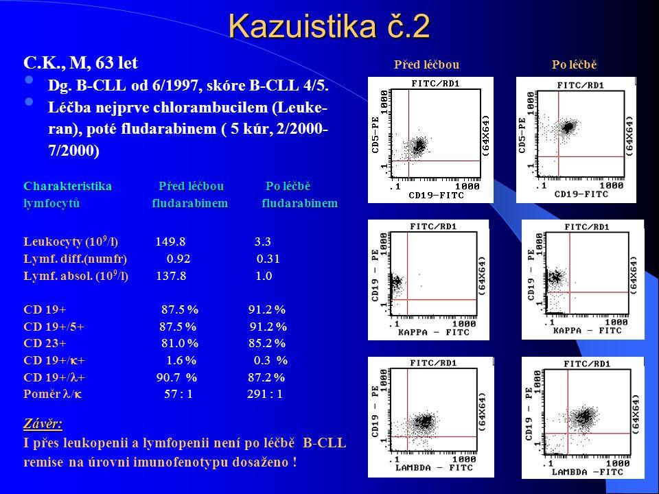 Kazuistika č.2 C.K., M, 63 let Před léčbou Po léčbě • Dg. B-CLL od 6/1997, skóre B-CLL 4/5. • Léčba nejprve chlorambucilem (Leuke- ran), poté fludarab